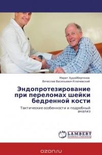 - Эндопротезирование при переломах шейки бедренной кости